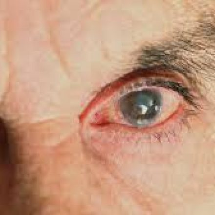 Se pospuso la Campaña Nacional de Detección del Glaucoma 2020
