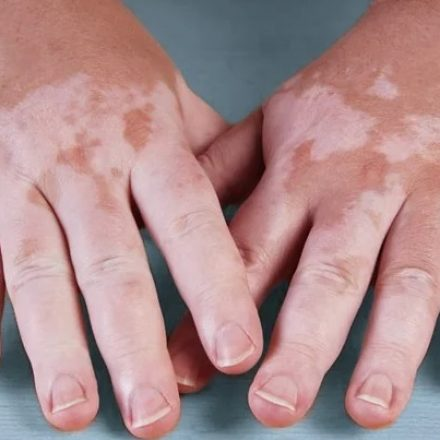 El programa de Dermatología en el hospital Señor del Milagro atiende consultas por vitiligo y otras afecciones de la piel