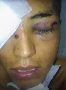 En otra causa, imputarán por vejaciones y allanamiento ilegal a los mismos policías que le hicieron perder el ojo a Luciano Cruz